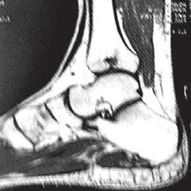 BE Lesão osteocondral central da tíbia distal. Relato de caso e revisão da literatura
