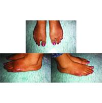 BE Polidactilia bilateral do pé adulto relato de caso